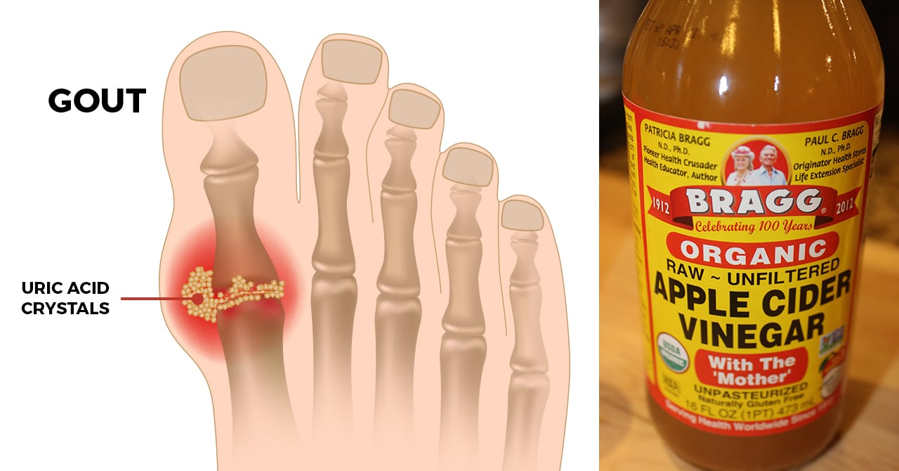 AVC for gout