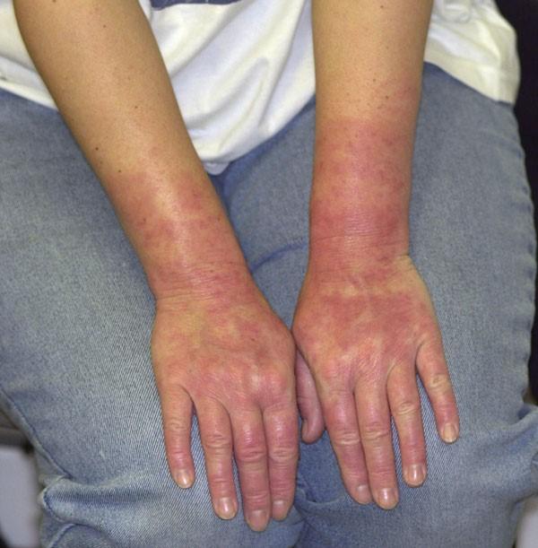 15 Влияние контакта кожи с химикатами, некоторые из них являются постоянными