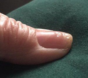 wavy nails